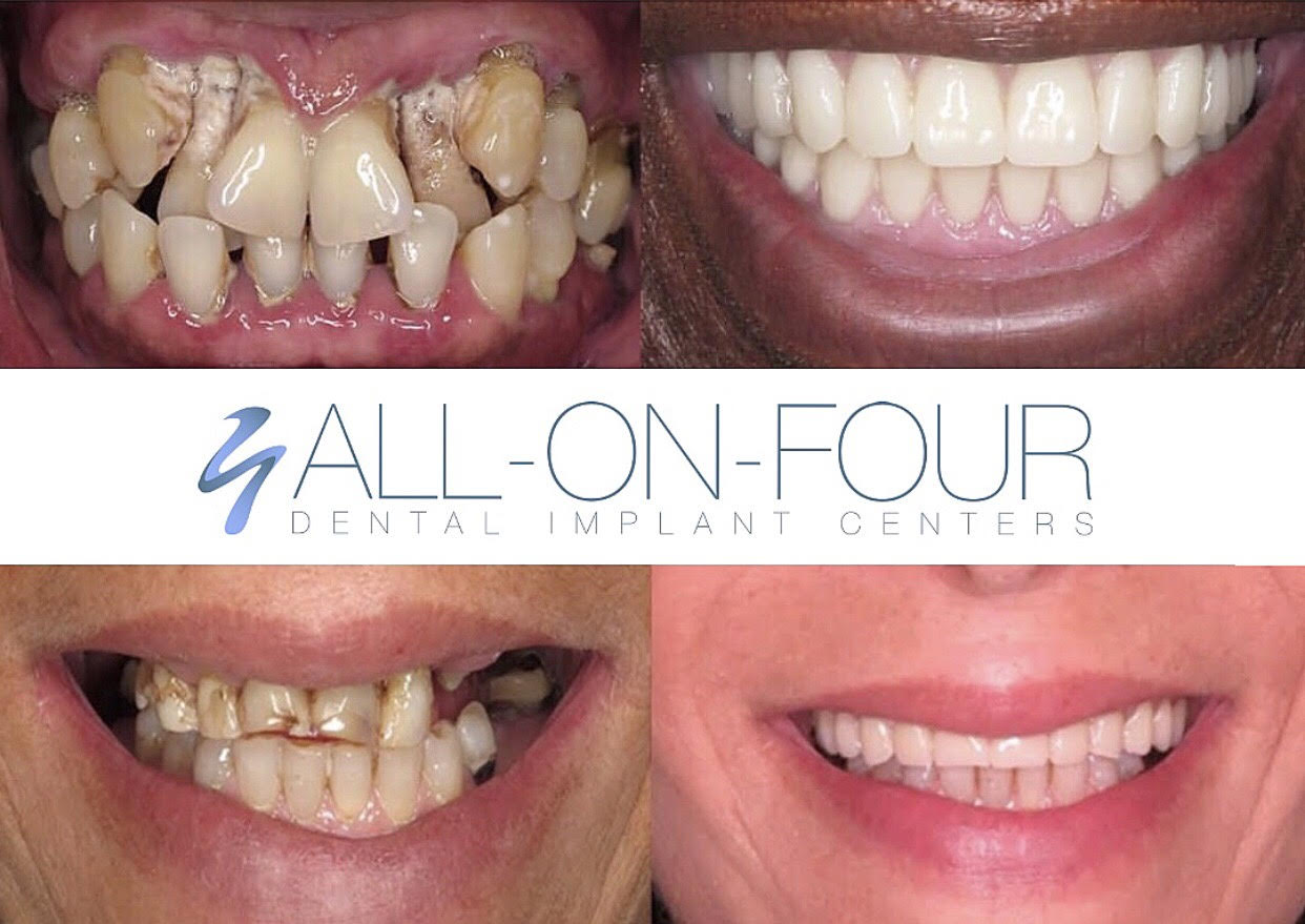 These transformation photos are the patient of Advanced Periodontics & Implant Dentistry. They got a completely restored, beautiful smile in a day.