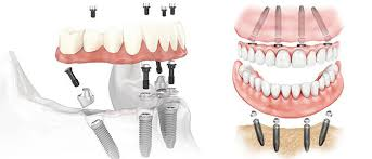 This visual of the All-On-Four procedure shows the four titanium implants that are secured into the jaw bone at a 45 degree angle. The customized fixed bridges are fastened onto the implant screws for a permanent, functional smile.