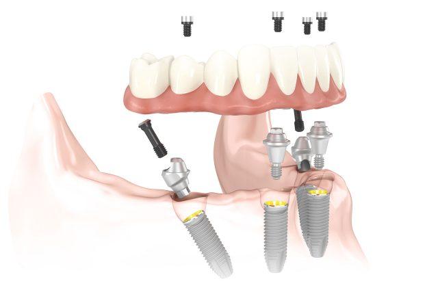 All On Four Dental Implants in Manhattan & Long Island