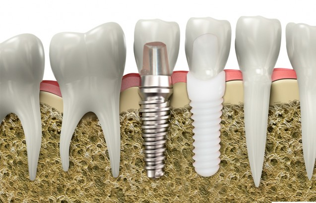 The difference between a titanium implant and a zirconia implant is shown.