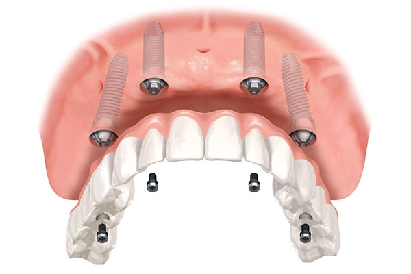 What Is All In One Implants?